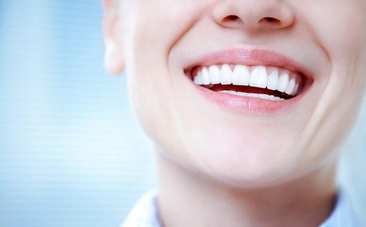 5 dicas para deixar seu sorriso ainda mais brilhante